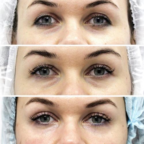 Как убрать морщины вокруг глаз в домашних условиях посл.  Все способы избавиться от морщин вокруг глаз